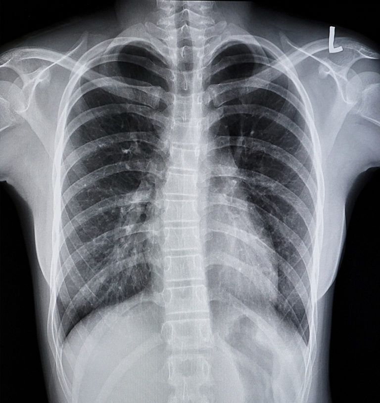 Film chest x-ray PA up right